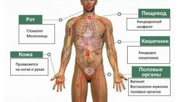 A krónikus bakteriális prosztatitisz kezelhető